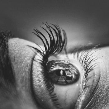 Kontaktlinsen mit Hornhautverletzung.