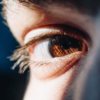 Avermann Contactlinsen in Dortmund behandelt Keratokonus.