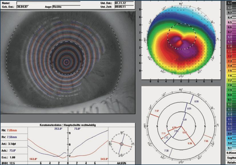 Beratung zu Keratokonus erhalten Sie beim Avermann Kontaktlinsen-Institut Dortmund.