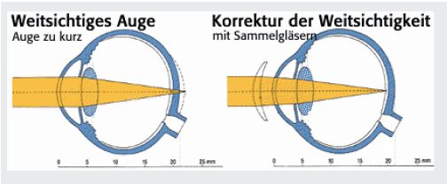 Weitsichtiges Auge Korrektur mit Sammelgläsern