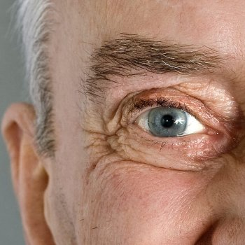 Altersweitsichtigkeit mit Kontaktlinsen beheben.